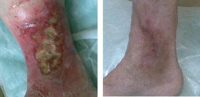 Варикозная язва на ноге лечение в домашних условиях фото
